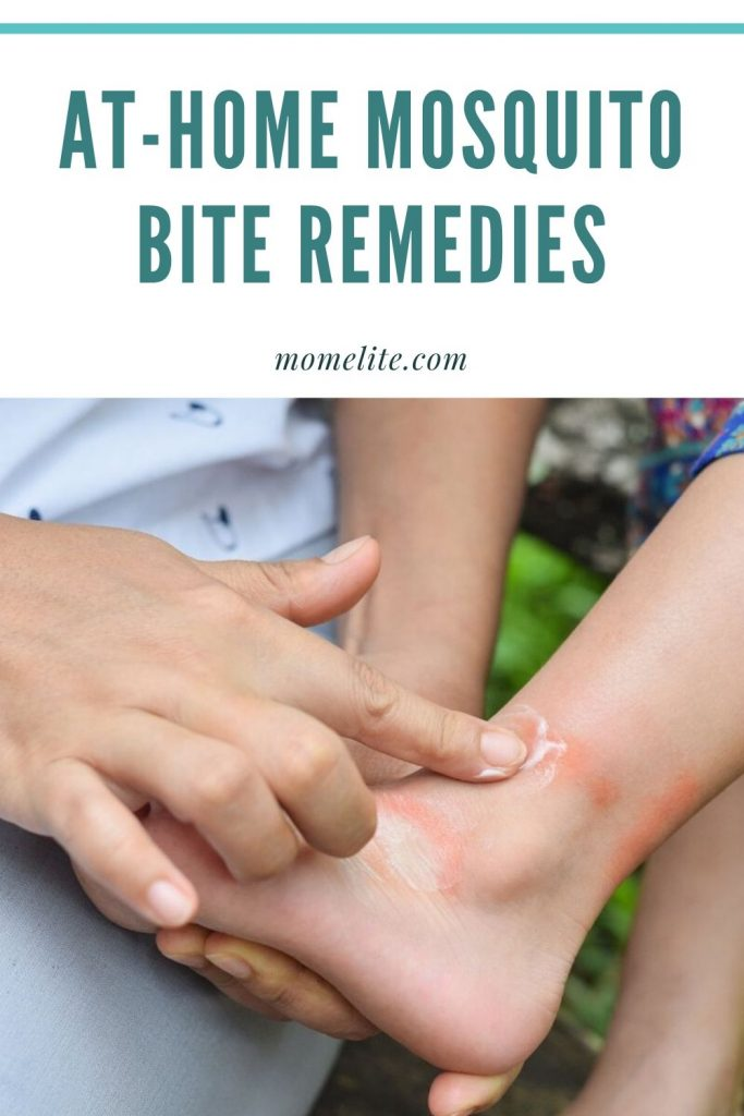 AT-HOME MOSQUITO BITE REMEDIES
